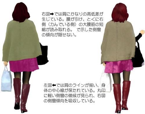 【姿勢観察ファイル】背骨の硬化04b