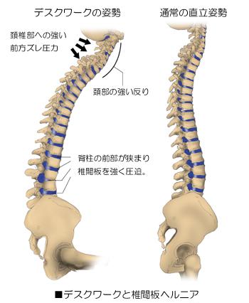 椎間板ヘルニア04b